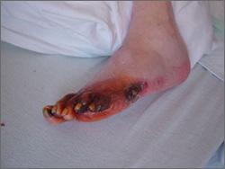 Caritas-Pflegeheim lässt Wachkomapatientin lebend mumifizieren
